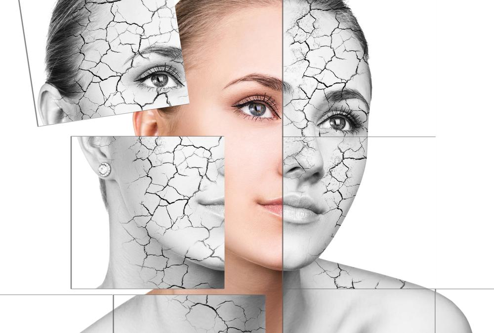 Tratează cu apa alcalină Kangen eczeme sau psoriasis